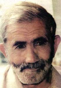 Ο Σεντίκ μετά την έξοδο από τη φυλακή το 1985. Η ιδιομορφία το αριστερό μάγουλο προέρχεται από σφαίρα κατά τη διάρκεια της τουπαμαρικής δράσης